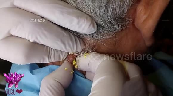 Squeezing a giant cyst with a laser is as unpleasant as you would expect