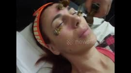Newsflare - Anti-age facial treatment snails and DermaPen