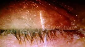 Newsflare - Woman's eyelids stuck together with SUPER GLUE